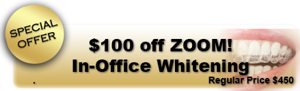 $100 off ZOOM! In-Office Whitening
